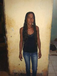 Fátima Alves dos Santos, 31 anos. Devido ao sofrimento, está pesando 40 quilos. | FOTO: Arquivo Pessoal